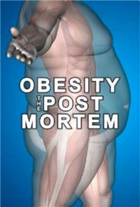 Obesity: The Post Mortem (2016) 1080p Poster