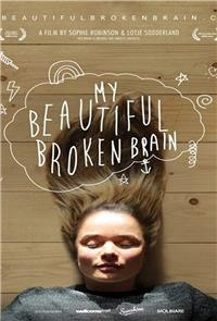 My Beautiful Broken Brain (2014) 1080p Poster